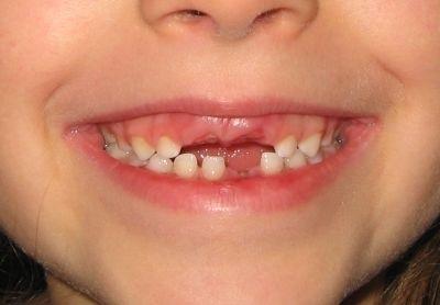 El ratoncito p rez y el hada de los dientes cr nicas for Suelo que se me caen los dientes